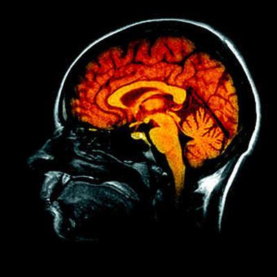 hypnose & cerveau